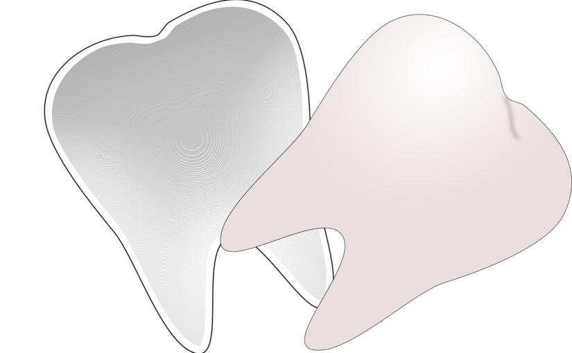 Śliczne zdrowe zęby dodatkowo efektowny cudny uśmieszek to powód do dumy.